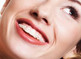 teaser-braces