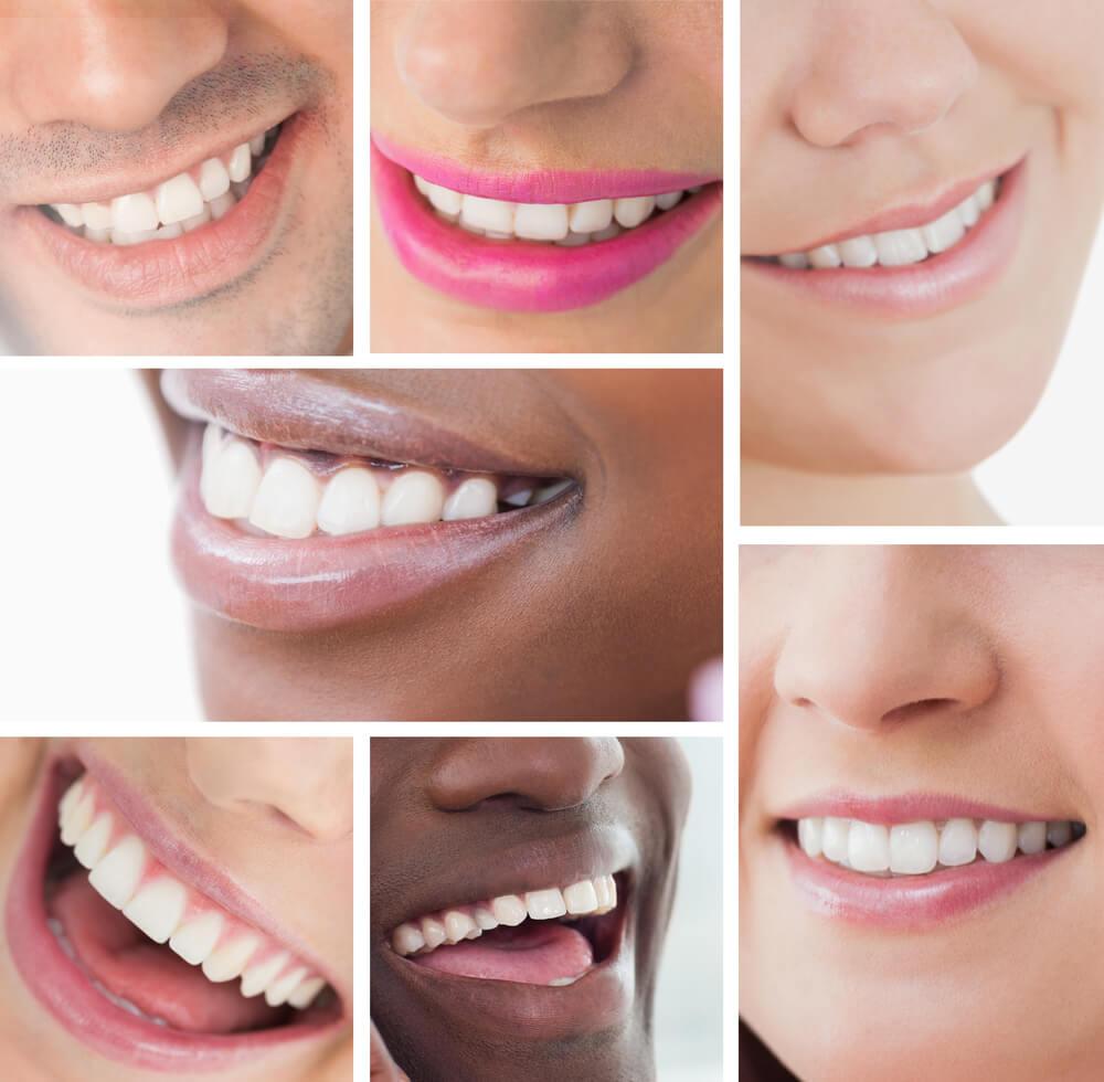 Diy dental kit for teeth whitening smile magic cosmetic dentistry diy dental kit for teeth white solutioingenieria Choice Image